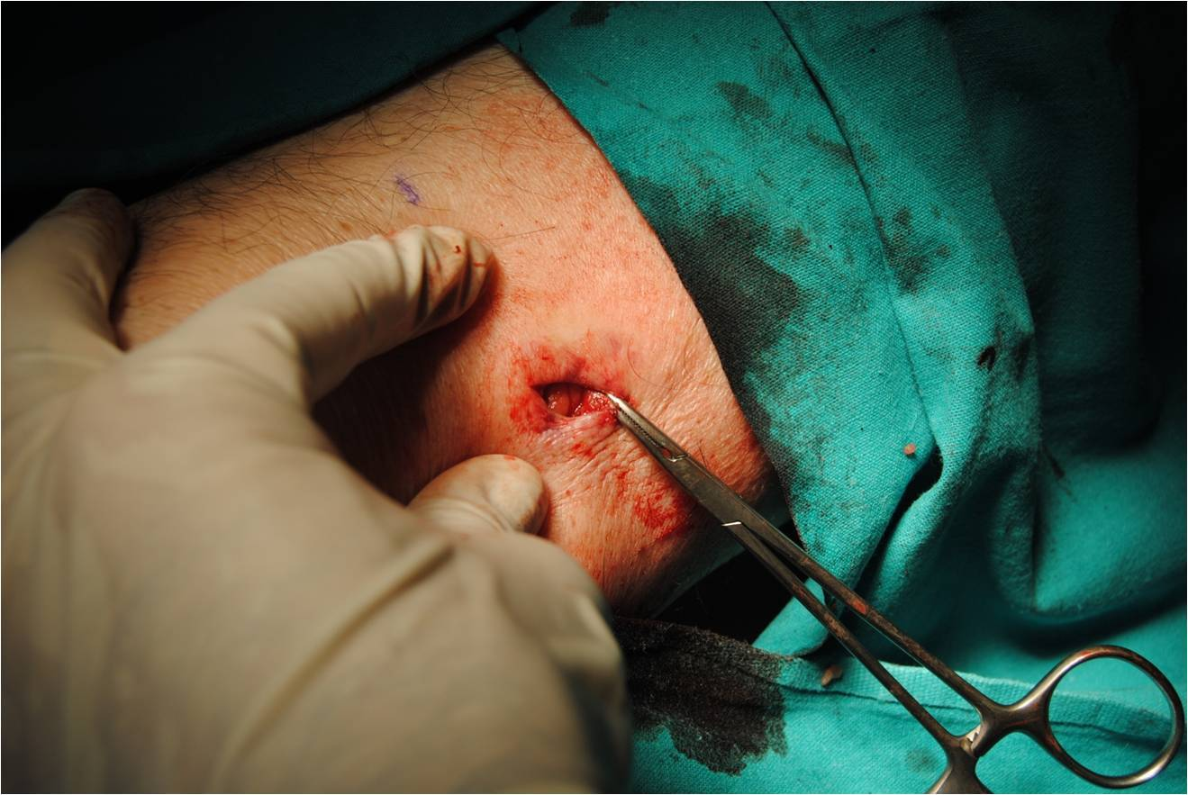 Surgical excision guided by ultrasound