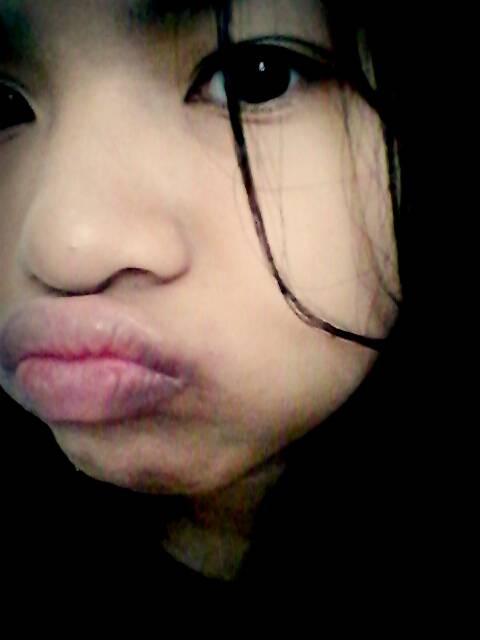 Fat cheeks^^