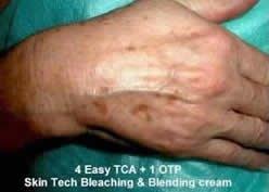 before pic - hyper pigmentation/ Foto antes do Peeling