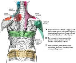Trigger Point Pain Referal Chart.