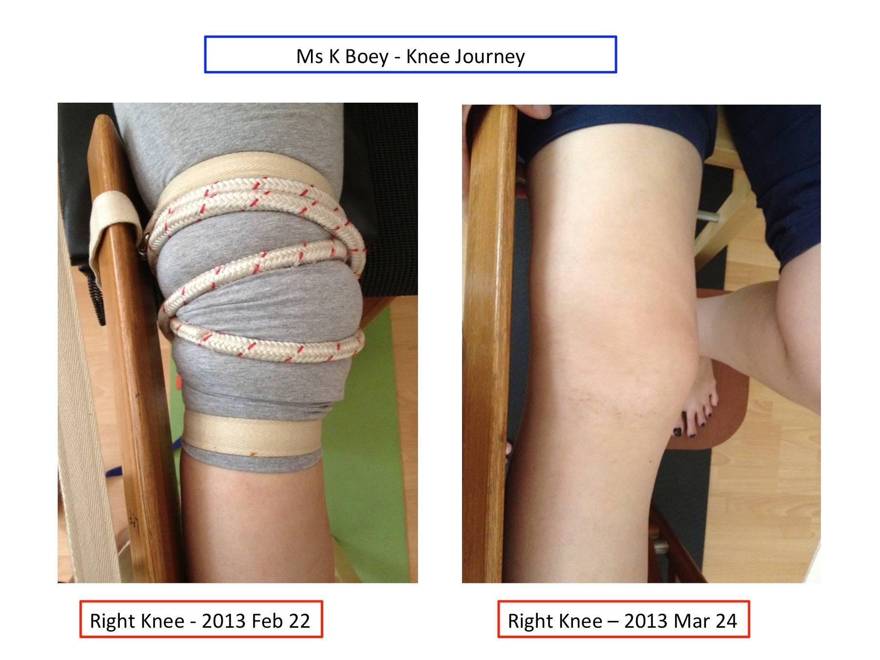Right Knee Comparison