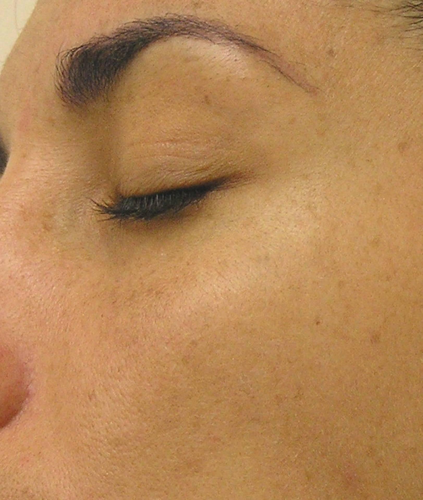 Darker Facial Pigment-Left Face After