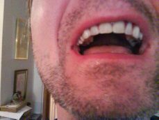 missing tooth 2