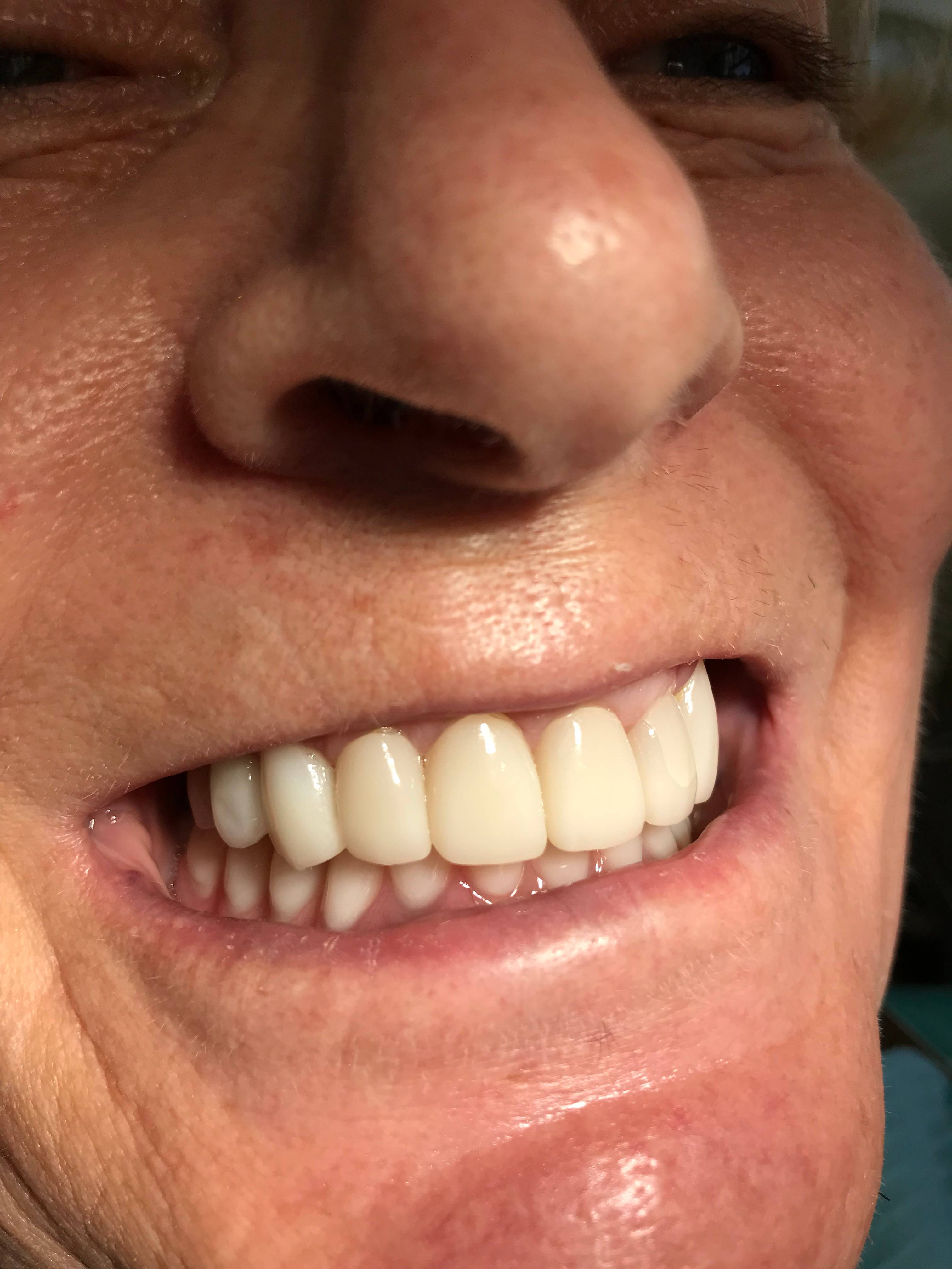 Zirconia Crowns and Mini Dental Implants