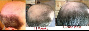 11 weeks on zx42 topical solution
