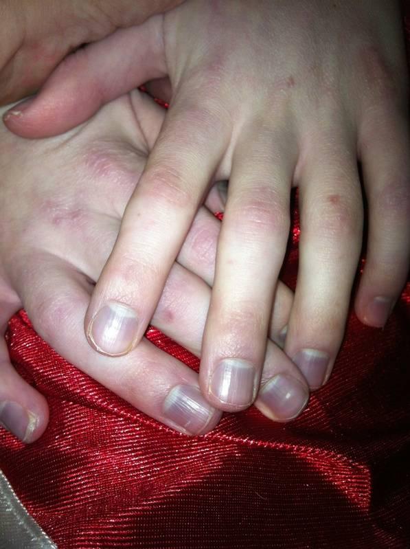 cyanotic nail beds?? cause?