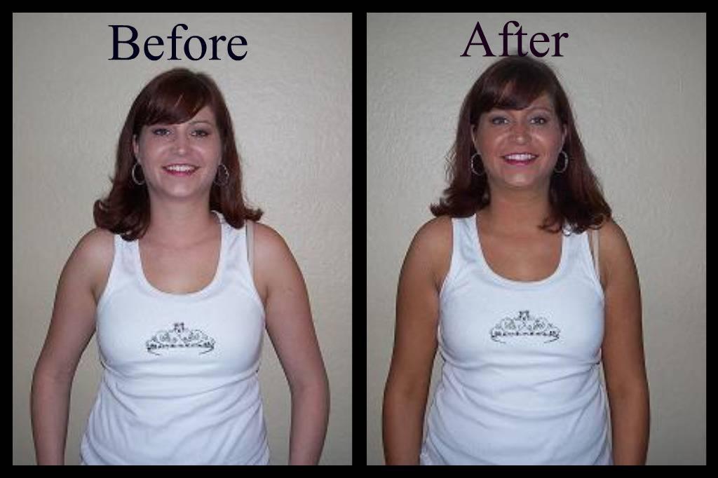 Rachel Before/After