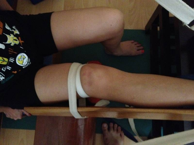 Right Knee (Buckled in Dec)