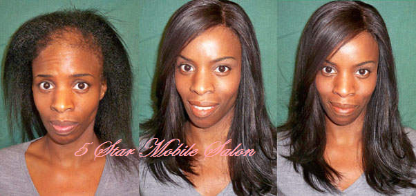 corrective Hair loss