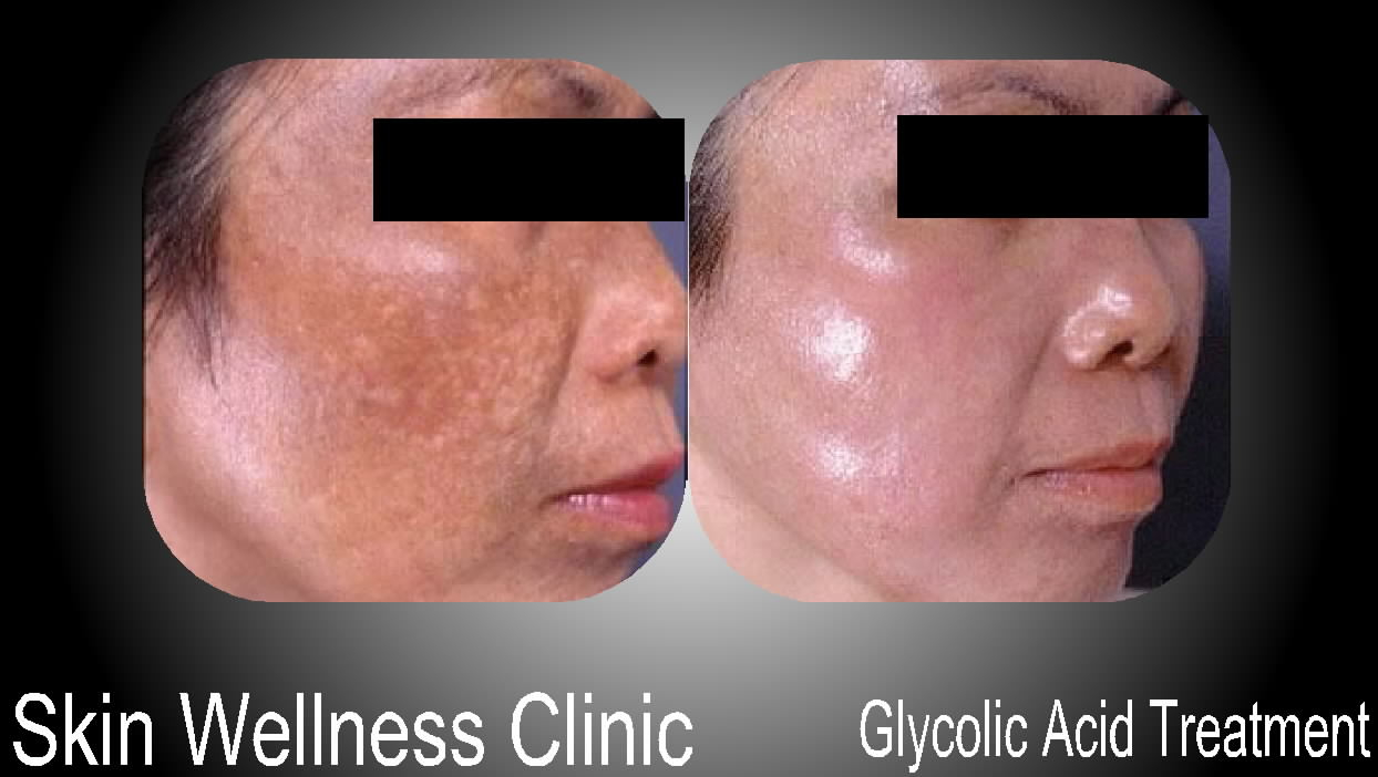 Glycolic Acid Treatment