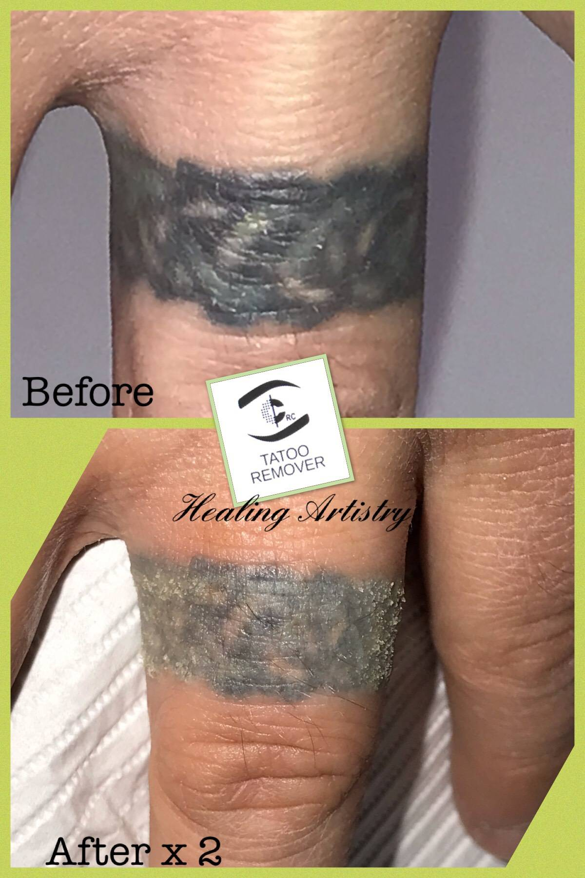 CRC Tatoo Remover I+II Body Art