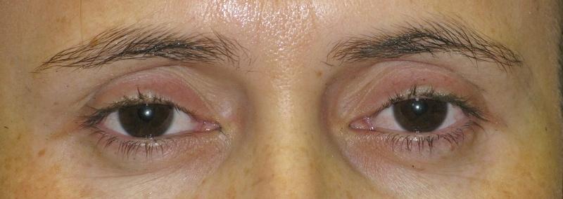 Upper Eyeliner Before