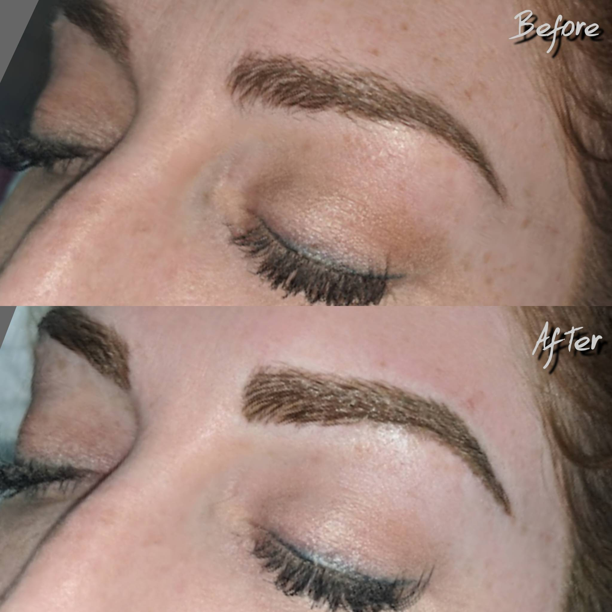 Before & After Enhancement