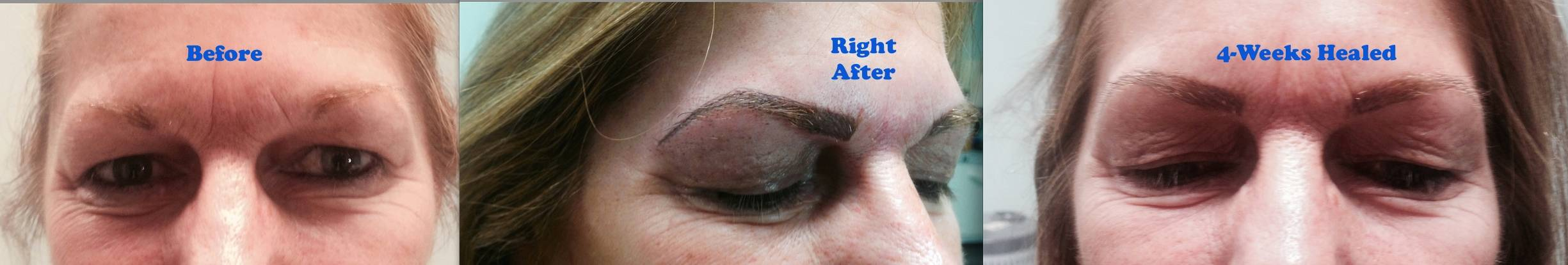 Eyebrows Before, After and Healed