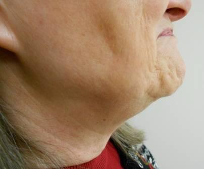 RF Skin Tightening Treatment - Before