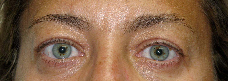 Eyebrows Before