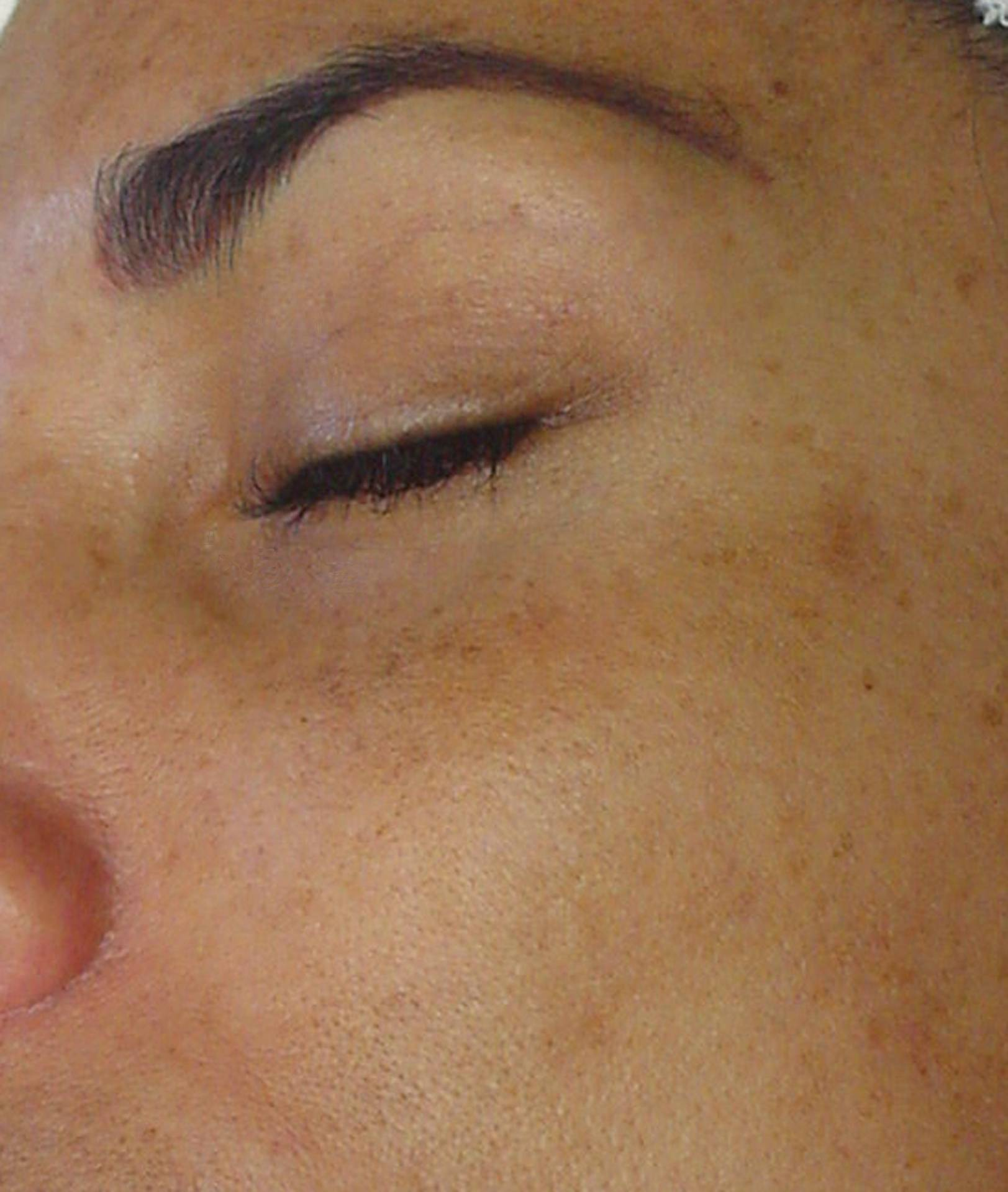 Darker Facial Pigmet-Left Face Before