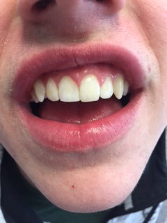 After Interal Bleaching of Traumatic Discoloration