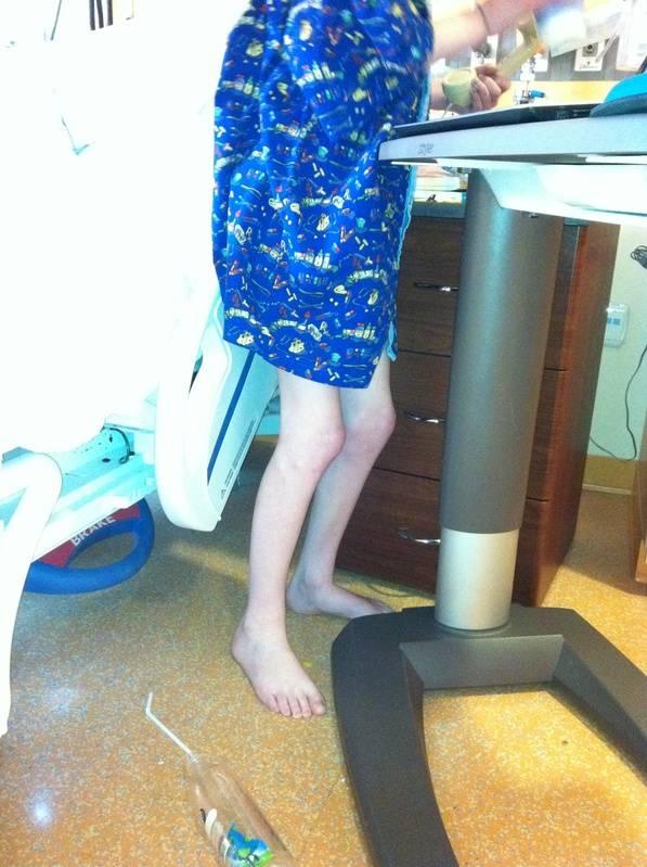 skinny legs with bent knees