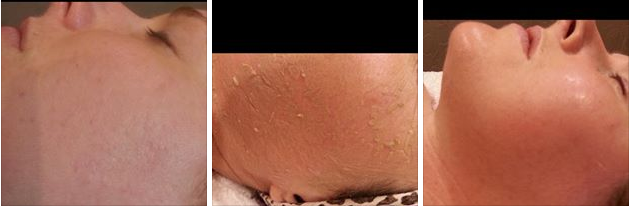 5-day natural herbal peel for acne scarring