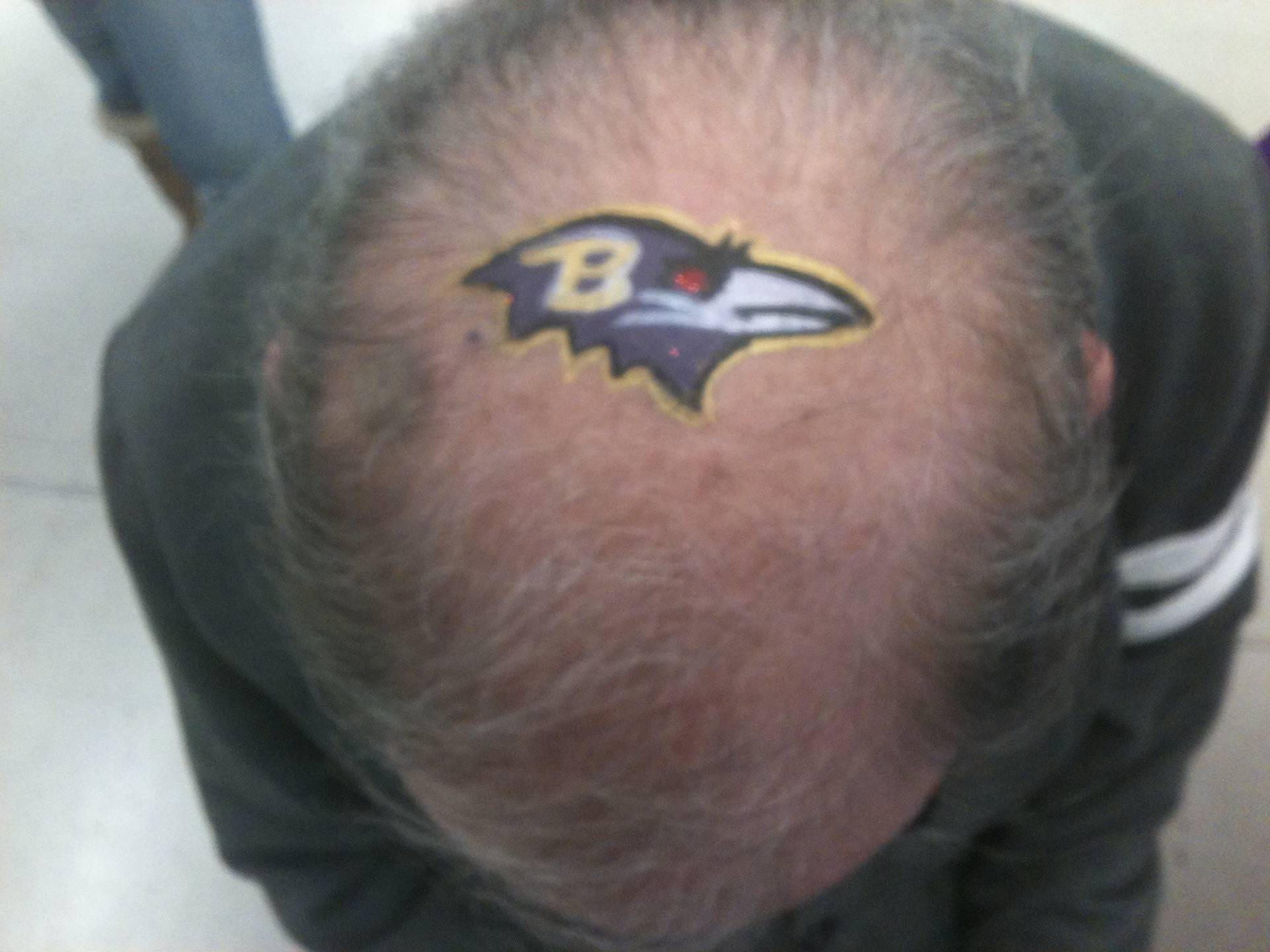Yes, this is the top of someone's head!