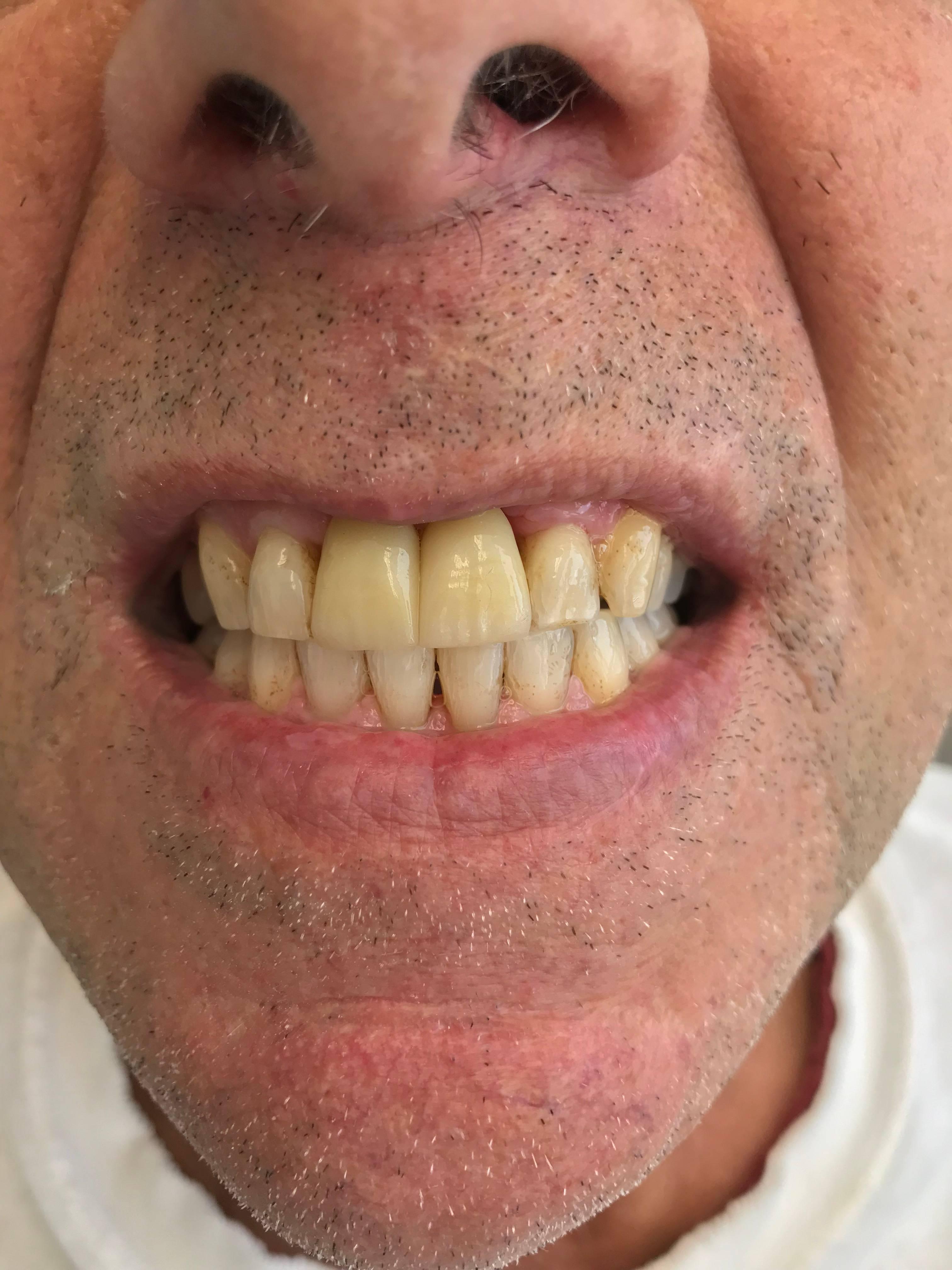 Mini Implant Crowns! - Natural Look!