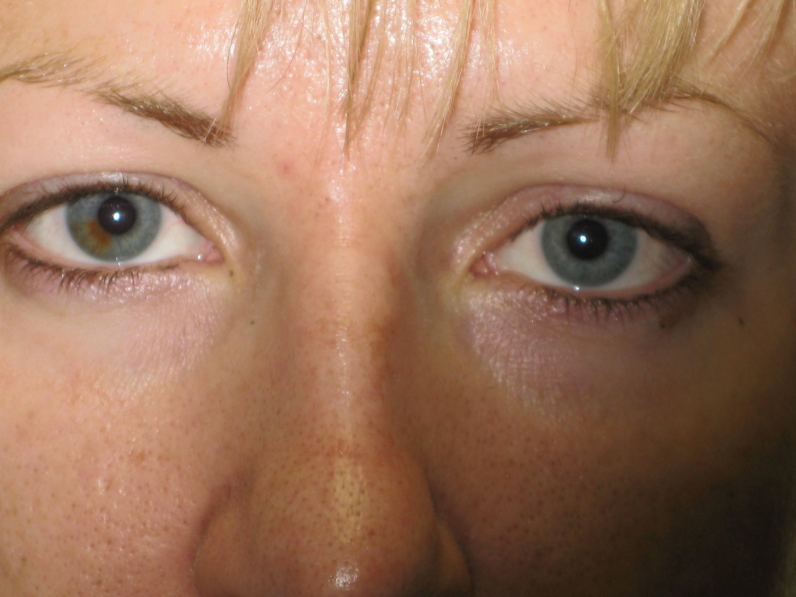 Lower Eyeliner Healed