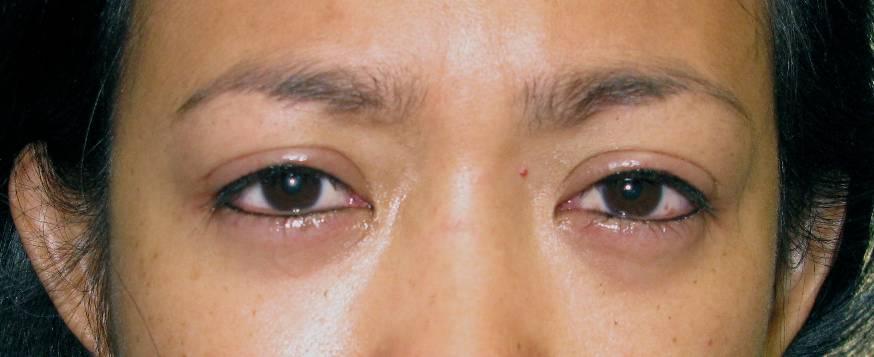 Eyeliner After