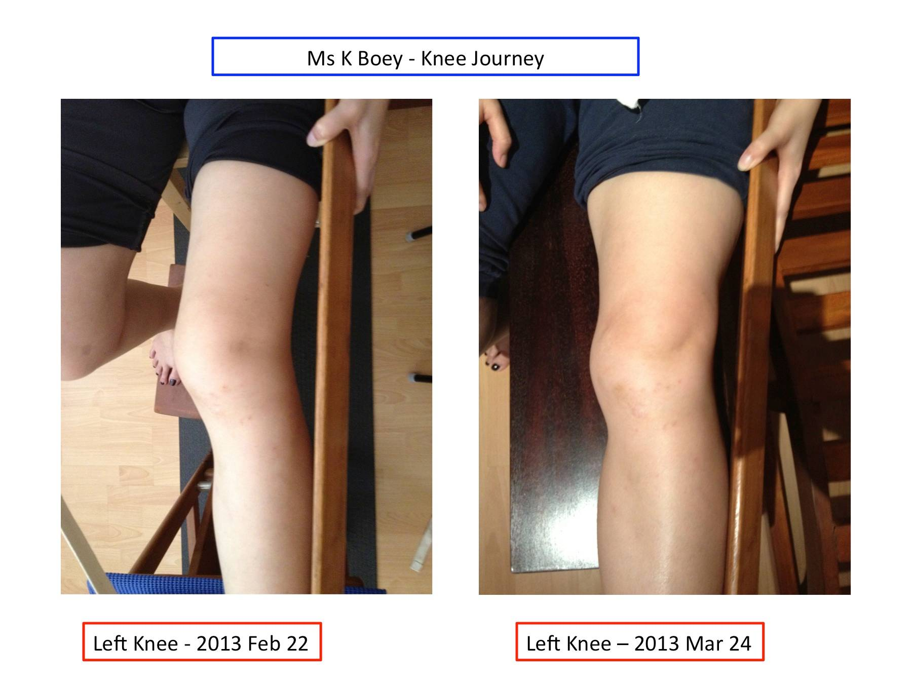 Left Knee Comparison