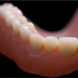 We will create dentures to suit any patient.