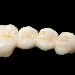 All porcelain restorations are an excellent esthetic option!