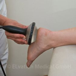 Piezo Wave Therapy on Plantar Fascia