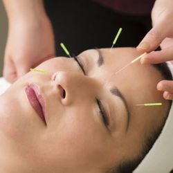 facial cosmetic acupuncture JMI Therapeutic Wellness Services | Complementary and Alternative Therapies
