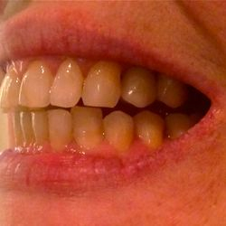 Dental Implant Notting Hill