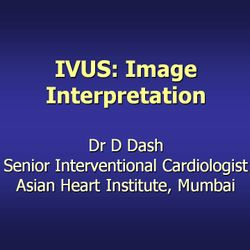 "Lecture on ""IVUS: Image Interpretation"" at Trivandrum, 2009."