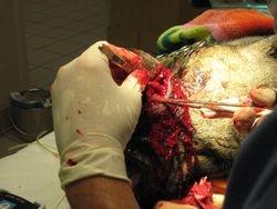 Kato's  Facial Tumor Surgery 10/14/10