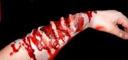 Werewolf claw marks