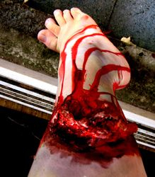 Zombie or just a severely wounded person
