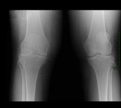 Knee with Valgus deformity