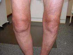 Knee with Varus deformity