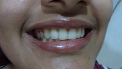 dental technician mrs uma joshi.many thanks to her.