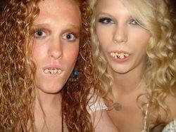 Redneck teeth