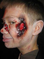 Burn make up