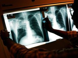 Colorado Increases Number of Refugees Diagnosed With Active TB to Sixteen