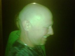 KO's shiny head.