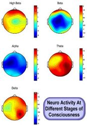 Neuro Activity At Different Stages of Consciousness