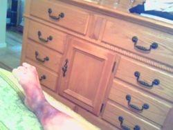 RSD in my foot