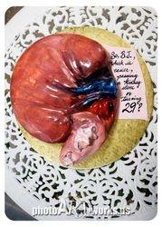 Kidney cake with kidney stones