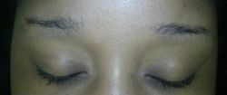 Brows before treatment