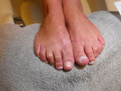 Before pink and white acrylic toes